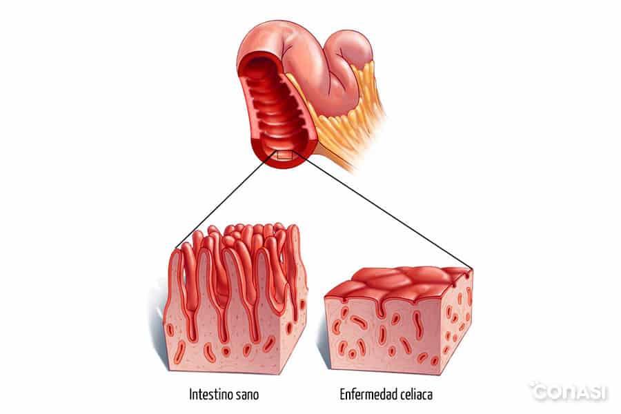 microvellosidades-intestino