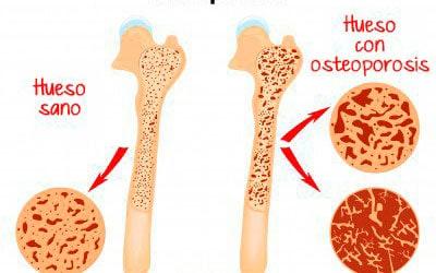 Leche-Osteoporosis
