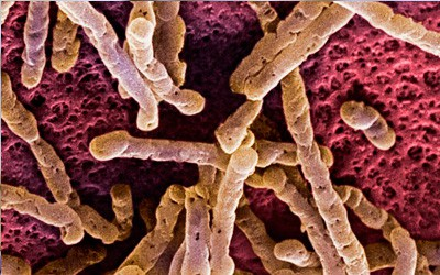 Candidiasis intestinal: una mirada científica