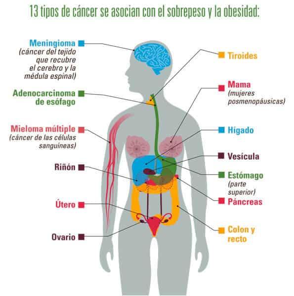 Relación entre el sobrepeso y la obesidad con ciertos tipos de cánceres - Alimentación y cáncer