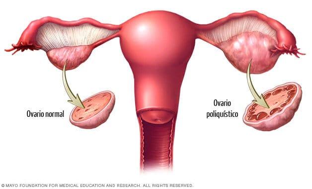 Imagen de un ovario normal y otro poliquístico - Síndrome de Ovario Poliquístico